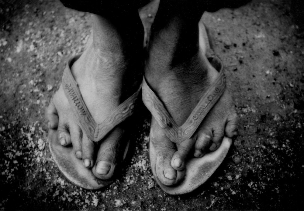 Sandaled feet of a brimstone collector. Twisted feet from many years of descending into Ijen Volcano to collect sulphur and carry out the heavy load, sometimes over 70 kgs, from the crater on a precipitous trail wearing nothing but sandals.  Java, Indonesia.