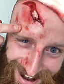 Bloke hits head on curb on night out and shows off massive cut so deep it exposes his skull.