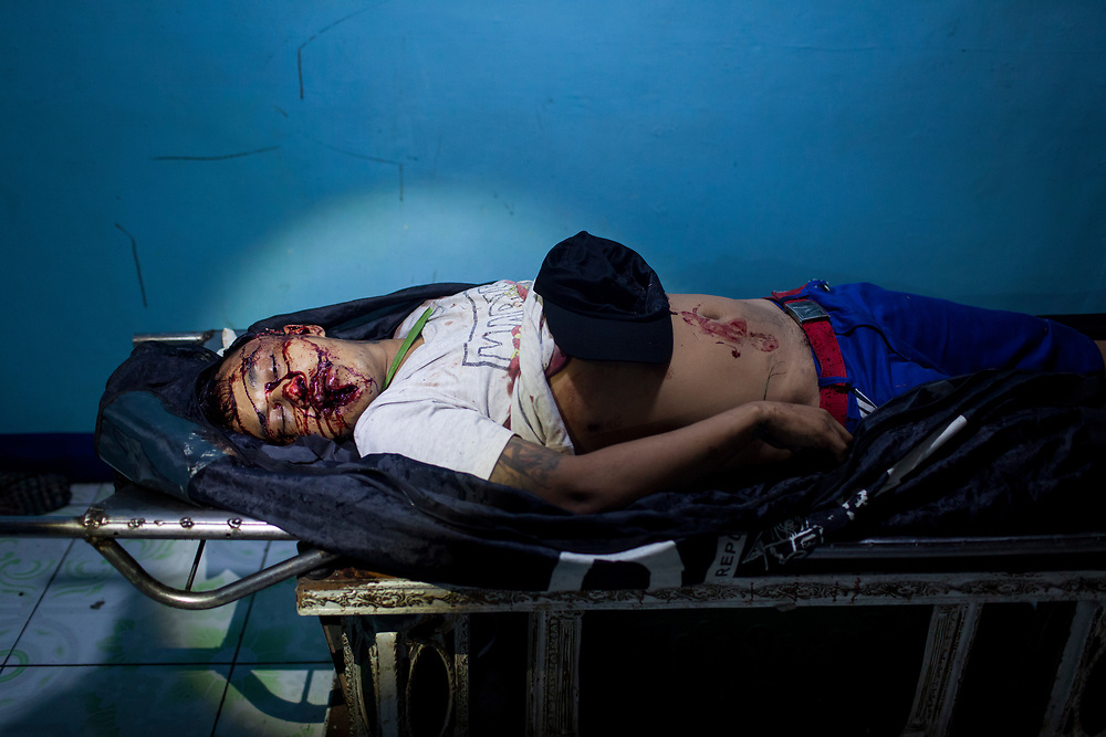 A body of a man killed is seen at Eusebio morgue in Navotas, Manila.  The murder is suspected to be related to the drug war.<br /> <br /> Over 12 thousand people including men, women and even young teens who are mostly the urban poor, have been killed since President Duterte initiated the campaign against drugs. The killings or executions are carried out by masked gunmen. Bodies in morgue showed signs that the victims were bound or handcuffed but the police report often states they fought back or tried to run away.