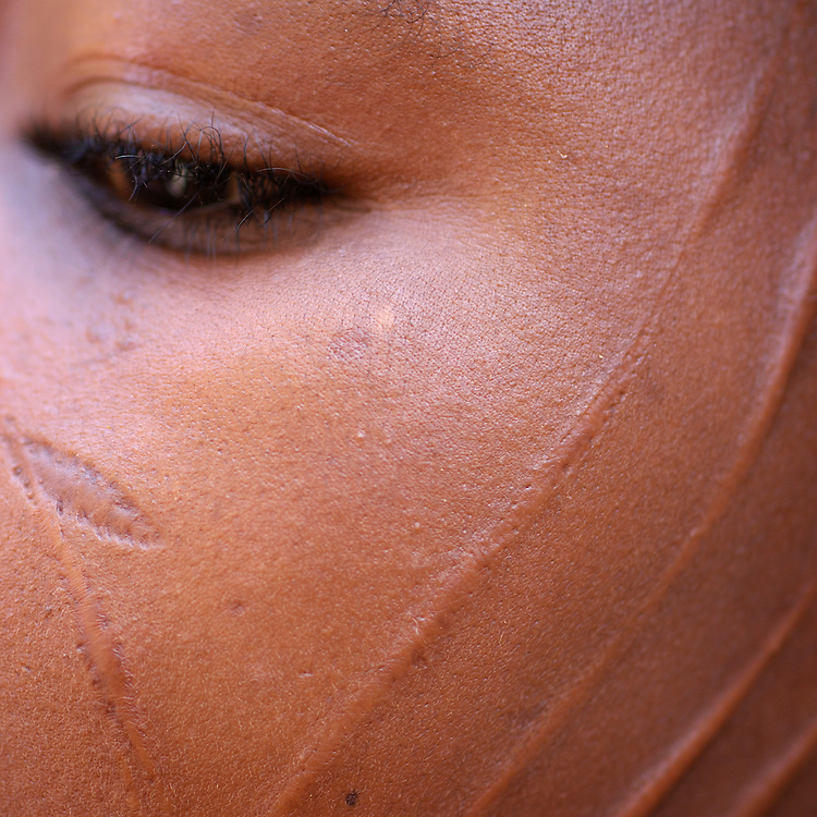 Benin, Tory February 28, 2006 - Woman with tribal scarification on her face. It represents the Djougou's region . Scarification is used as a form of initiation into adulthood, beauty and a sign of a village, tribe, and clan.