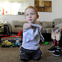 Austin Schoppert holds the controller while he plays Wii using his chin at his home in Tea. Schoppert's limbs were amputated in 2009 after a rare complication from bacterial meningitis. The 5-year-old can kick a soccer ball, play video games on the family's Nintendo Wii, hop up and down the stairs at the apartment, feed himself and write the letters of the alphabet. The next test for Schoppert will come in the fall, when he begins kindergarten.