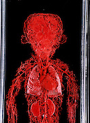 A human nervous system. Gunther von Hagens' Bodyworlds exhibit. Body Worlds is a traveling exhibit of real, plastinated human bodies and body parts. Von Hagens invented plastination as a way to preserve body tissue and is the creator of the Body Worlds exhibits..