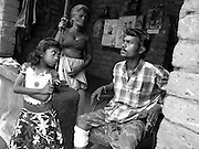 43 years old Sunil lives next to Jananeethi Institute near Thrissur. A dailywage worker, he is the only earning memebr of his family. Health complications due to alcoholism resulted in a gangrene on his leg. George helped save his leg from amputation by providing proper healthcare and tried to get him out of his drinking problem as well.