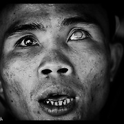An ethnic Karen refugee, blinded by a landmine looks on from the Mae La refugee camp near Mae Sot, Thailand.(Photo by David Longstreath)