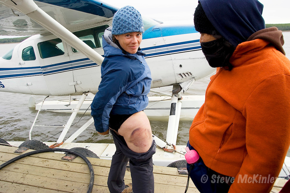 Nahanni River, NWT: August 25, 2006 -- NAHANNI RIVER CANOE TRIP 2006 --  Flavia Ferrero (L) shows off a spectacular bruise on the floatplane dock in Fort Simpson prior to a canoe trip down the Nahanni River in the Northwest Territories August 25...Steve McKinley photo.