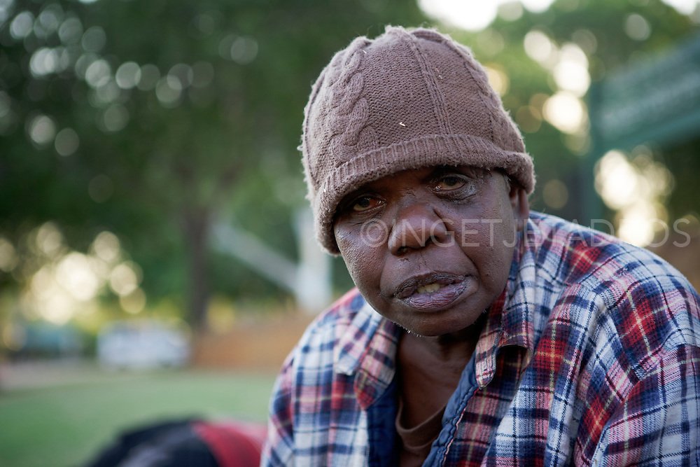 Homeless, sleeps in different places in Broome