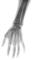 X-ray image of a hand (black on white) by Jim Wehtje, specialist in x-ray art and design images.