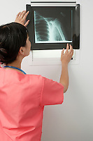Doctor examining x-ray in hospital