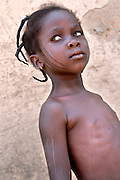 Benin, Natitingou November 26, 2006 - Young girl with facial scars and scarification on her body . It represents the Prince of Djougou, smal city in the center of Benin Scarification is used as a form of initiation into adulthood, beauty and a sign of a village, tribe, and clan.