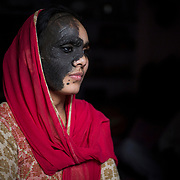 RAJASTHAN, INDIA - MARCH, 10, 2017 : Naseem Banu, 27, who was born with a huge birthmark that covered nearly half her face, is pictured at her residence in Jaipur city of Rajasthan, India. <br />