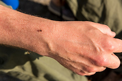 A tick on a man's arm in York, Maine.