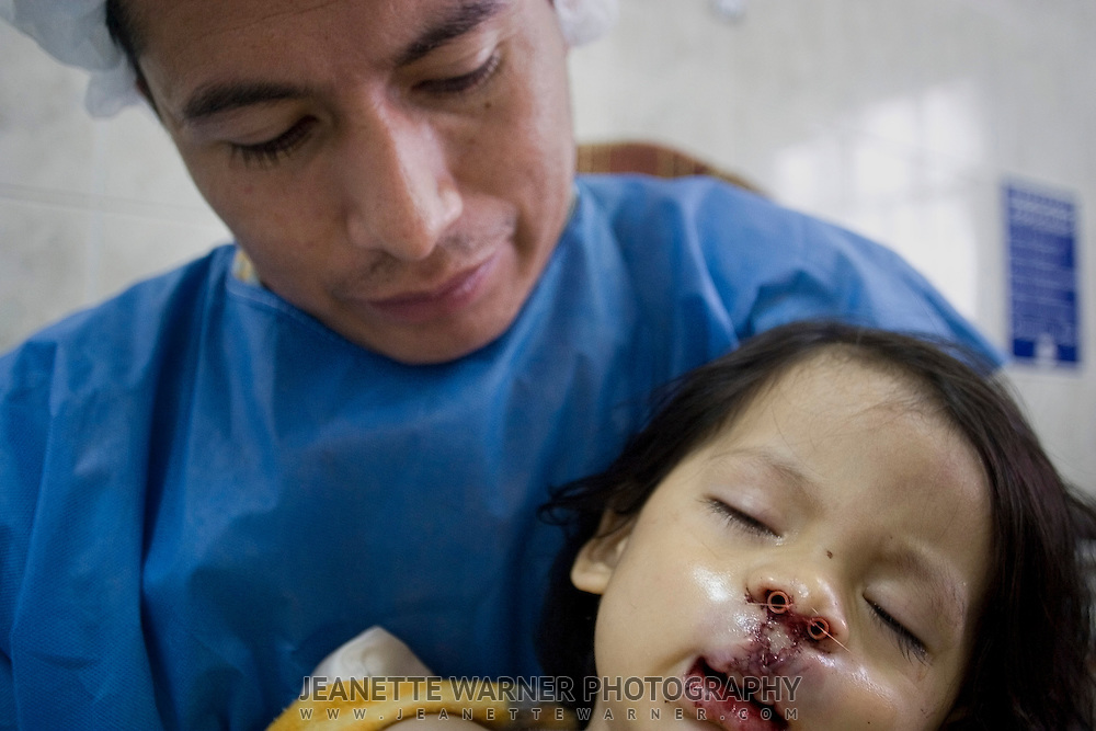 """Edgar Ortíz holds his sleeping son post surgery, admiring his face with a full lip.  When inquiring what he could do to pay the doctors back, Dr. Joseph Clawson replied, """"You already have.  The look on your face is all the payment I want."""""""