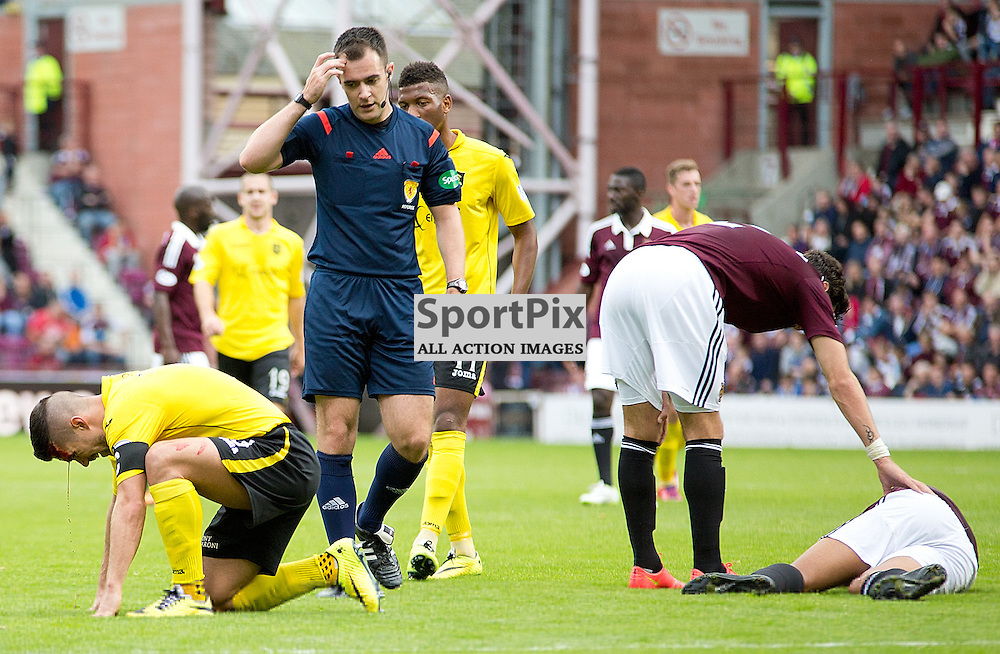 Hearts v Livingston Scottish Championship 28 September 2014; Livingston's Jason Talbot sees blood after a clash of heads with Heart's Osman Sow  during the Heart of Midlothian v Livingston Scottish Championship match played at Tynecastle Stadium, Edinburgh;