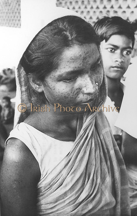 Indian woman who has survived  Smallpox but who will carry the scars for the rest of her life, 1970s. WHO photograph by L Dale.