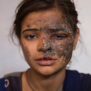 UTTAR PRADESH, INDIA - MAY, 04, 2017 : Khushboo Devi, 20, pictured after her father Manik Chandra, 40, threw acid on her for filing a police complaint about his involvement in the sex trade at her residence in Sarai Azamabad village in Mathura in Uttar Pradesh, India.<br />