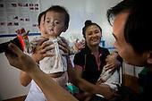 Lao Twins Cataract Story