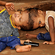 ODISHA, INDIA - JULY, 04, 2017: Two-year-old conjoined twins Honey (right) and Singh (left), pictured at their residence in a village in the Kandhamal district of Odisha, India.<br />