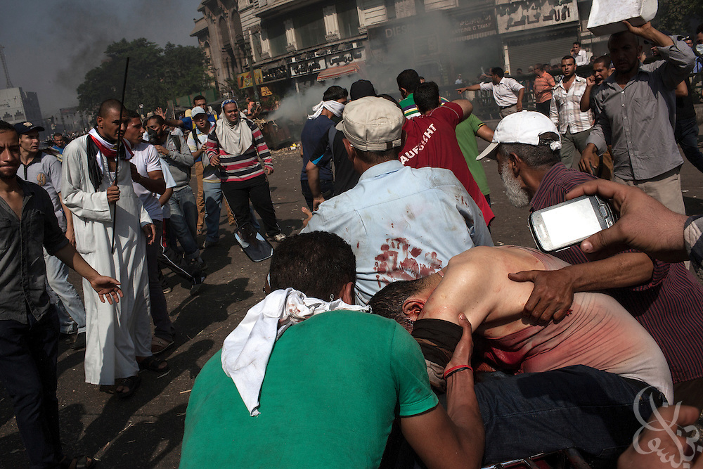 "A critically wounded protestor, shot in the head, is evacuated to a nearby mosque field hospital by fellow supporters of deposed Egyptian President Mohamed Morsi during intense street clashes during the August 16, 2014 ""Day of Rage"" protests in Cairo, Egypt."