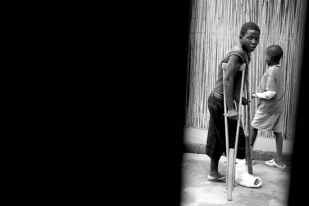 A patient on crouch walks around the compound at CBL Center of Bujumbura ( Center for injured people). @ Martine Perret . 24 October 2005.