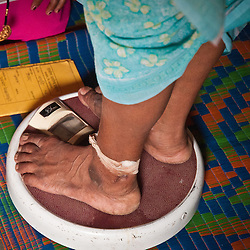 A pregnant woman stands on the only scale in the village while the VHW keeps detailed records on her progress.