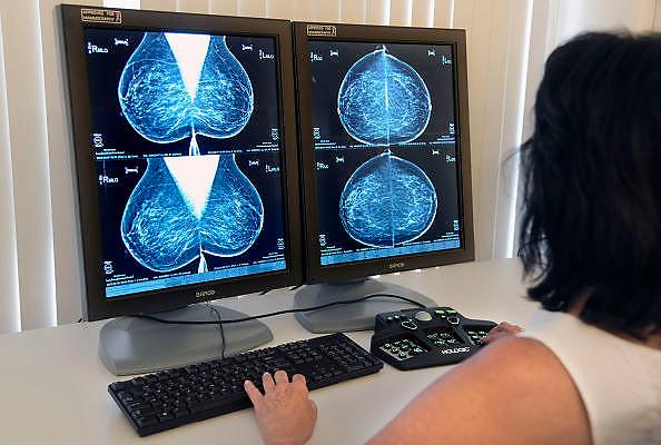 Nederland, Nijmegen, 14-8-2012Borstkankeronderzoek. Arts bekijkt rontgenfoto op afwijkingen bij het landelijk referentiecentrum borstkanker. Onderzoek Mammografie, gezondheidszorg, specialist, radioloog,oncologie,oncoloogBreast Cancer Research. Doctor looks at x-ray abnormalities. Health care, specialistFoto: Flip Franssen