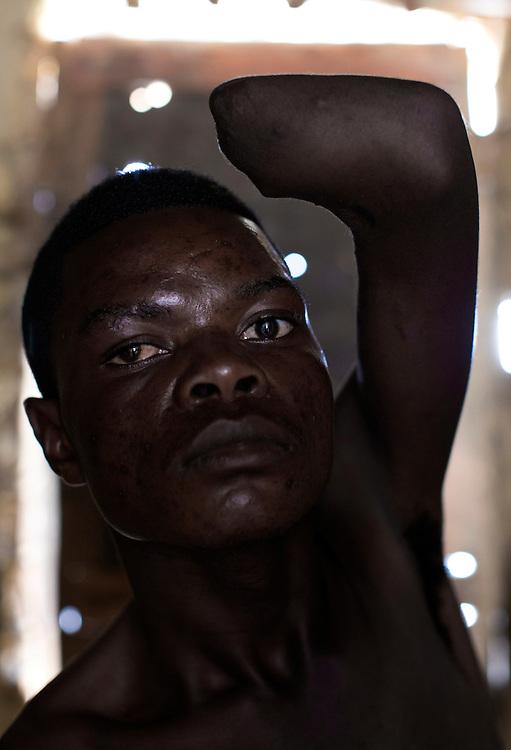 Nzibira, Congo<br /> <br /> Musiwa Kaningini, 18 &aring;r, enarmad sedan br&aring;k om vapen n&auml;r han var med rebell gruppen Mai Mai (d&aring; 14). G&aring;r idag i kyrkan och ber om f&ouml;rl&aring;telse.<br /> <br /> Photo: Niclas Hammarstr&ouml;m