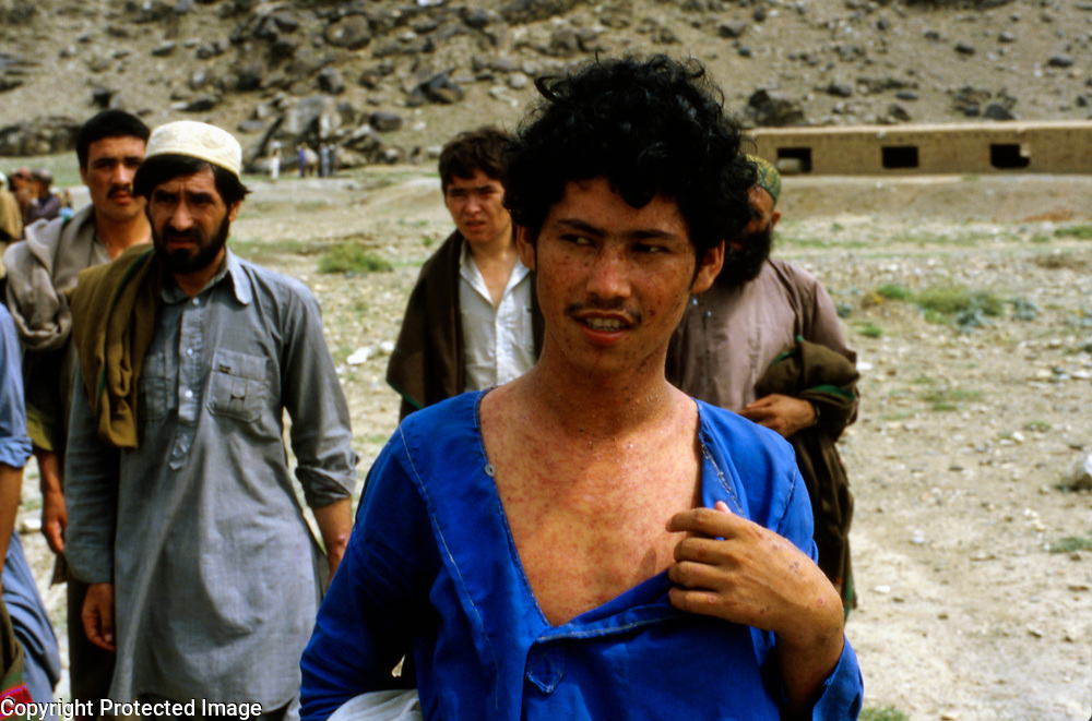 30 July 1985<br /> Trainee suffering from prickly heat. Ethnic group unknown.