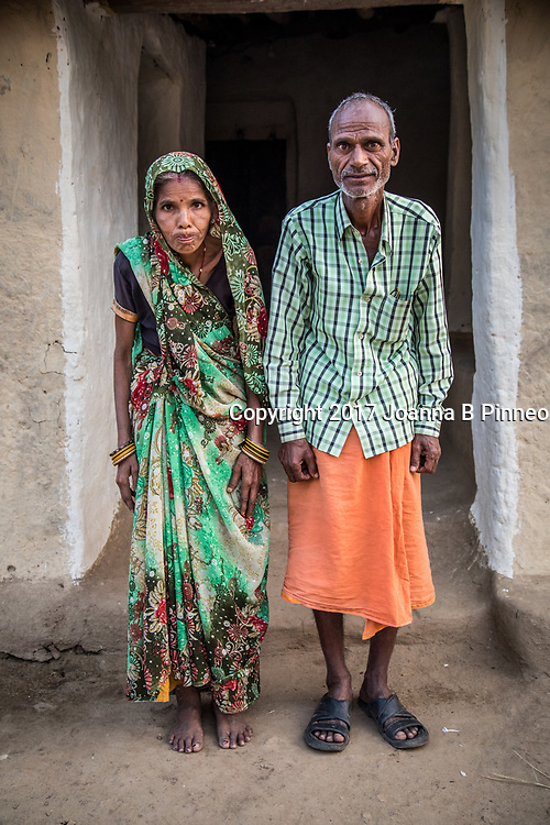 Gariya, Sonbhadra, Uttar Pradesh, India<br /> Kevala Devi, age 35 and husband  Lale Ram Yadom, age 40<br /> Kevala has a lot of back pain and pain in her knees. She has joint pain and her body aches continue to get more painful.<br /> The Singrauli district in the northeastern part of Madhya Pradesh and Sonbhadra district in Uttar Pradesh was a forested region populated by farmers and laborers. A 2012 report by the Center for Science and Environment based in New Delhi sampled water, soil, cereals in the areas and villages around the reservoir. Most of the drinking water was found not suitable for drinking. A few of the towns that have water supplied by the companies or government are good. The results of the water, soil and fish sample testing indicate pollution due to mercury, arsenic, and fluoride. According to the UP government, of Sonbhadra's 600 villages, 250 have excessive fluoride in the ground water. 150 of these have levels much above what's permissible.