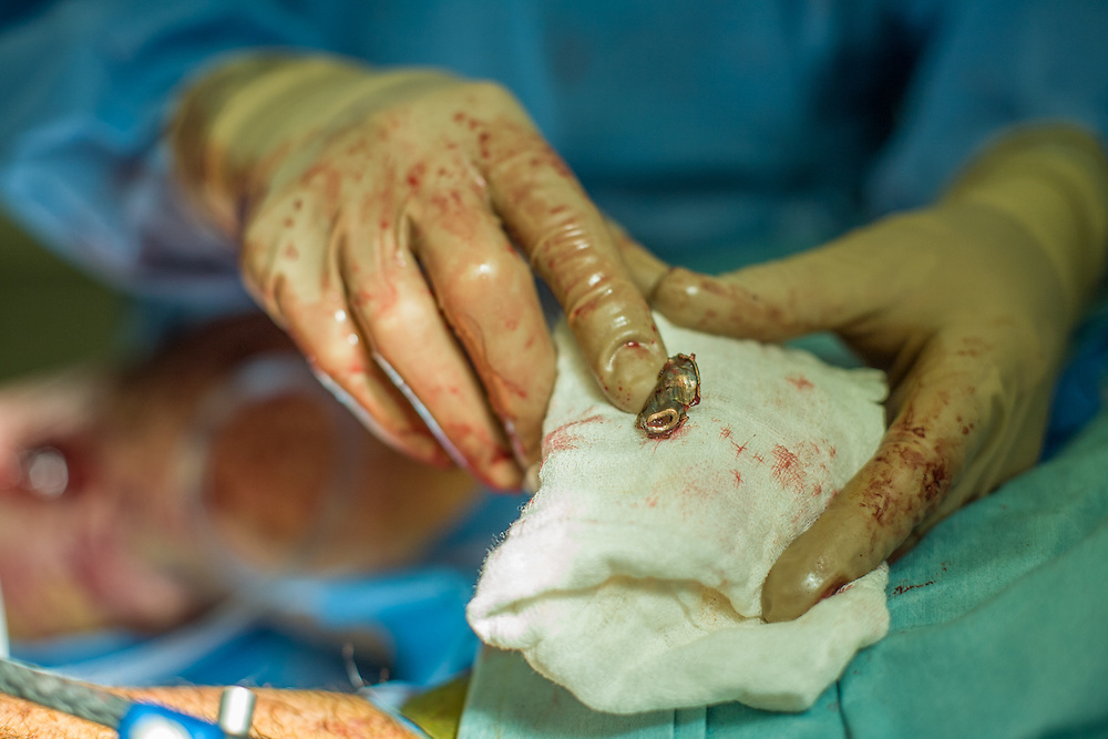 A Dutch army doctor, member of a multi-national medical team, exhibits a bullet extracted from a battlefield casualty patient, during surgery at Kandahar Airfield Hospital, Kandahar Province, Afghanistan.