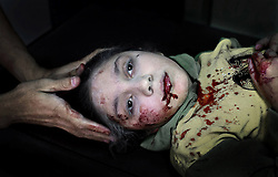 61164676<br /> Haunting image of Syrian girl, 11, being treated for shrapnel wounds after being hit by bomb while playing outside her home wins Unicef's photo of the year. She was photographed in an Aleppo clinic by Swedish freelance photographer Niclas Hammarström, whose work has just earned him Unicef's Photo of the Year award.<br /> Picture filed Thursday, March 6, 2014. Picture by  imago / i-Images<br /> UK ONLY