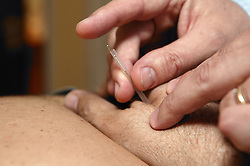 Practitioner inserting acupuncture needle,