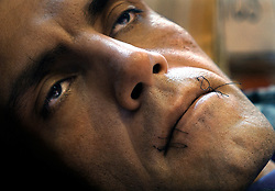 An Iranian refugee used a needle and thread to sew his mouth shut as he participates in a hunger strike in protest of the Belgian governments decision to reject his and 350 other refugees applications for political asylum. (Photo © Jock Fistick)