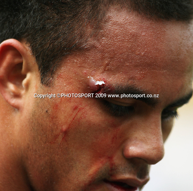 Harbour winger Rudi Wulf comes to the sideline to have a cut bandaged.<br /> Air NZ Cup - Wellington Lions v North Harbour at Westpac Stadium, Wellington, New Zealand. Saturday 17 October 2009. Photo: Dave Lintott/PHOTOSPORT