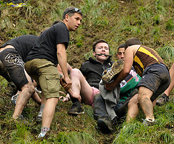 © Licensed to London News Pictures. 26/05/2014; Brockworth, Gloucestershire, UK.  A man is injured with a suspected broken leg, and is carried down the hill with a makeshift splint and biting on a stick for the pain, in the annual custom of Cheese Rolling down Cooper's Hill, with participants chasing a double Gloucestershire cheese down a very steep slope.<br /> Photo credit: Simon Chapman/LNP