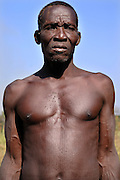 Benin, Natitingou November 30, 2006 - Man with tribal scarification on his face and body. Scarification is used as a form of initiation into adulthood, beauty and a sign of a village, tribe, and clan.