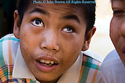 A blind 9 year old Asian boy is listening to other people at a hospital in communist Laos.
