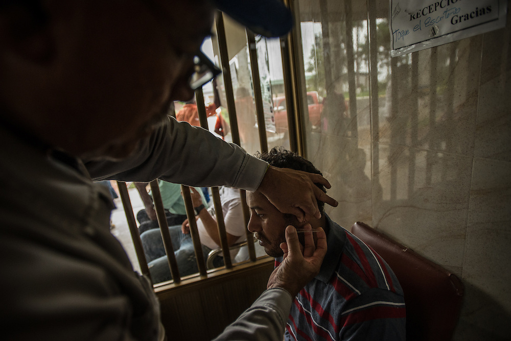 TUMERERO, VENEZUELA - MAY 25, 2016: Gold miner Ronnenys Sánchez gets his ear pricked during a blood test for malaria at a clinic in Tumerero. The spread of malaria in Venezuela is a state secret. Since 2007, the government has not submitted annual epidemiological reports on the disease and says there is no epidemic. But the most recent report, obtained by The New York Times from Venezuelan doctors involved in compiling it, confirms a surge is underway.  Last year, malaria cases rose 56% to 136,000 cases, the highest level in 75 years when the state began efforts to eradicate the disease, according to the report. Malaria has cut a wide swath through the country with cases now present in half of its 23 states. And among the strains present here is Plasmodim falciparum, the most fatal and severe form of the disease. PHOTO: Meridith Kohut for The New York Times