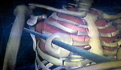 17th November, 2005. Mandeville, Louisiana. <br /> Videograb courtesy Denise Le Blanc/LMNO Productions taken from TV video grab. This is the LMNO graphic showing how the a blue marlin's sharp nose speared Denise Leblanc's chest in an attack off the Panama coast in 2000. Denise barely survived the horrific attack. Denise and her doctors have credited her breast implant with saving her life. <br /> Photo; Charlie Varley<br /> varleypix.com<br /> Photo courtesy; Denise Le Blanc