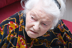 Portrait of a woman with Alzheimer's disease,