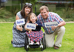 Repro Free: 03/09/2014<br /> Lara Bayliss (3) with her Sinead and Mark from Bray Co Wicklow is pictured with her parents at the launch of the Temple Street national Spina Bifida services research report. This report shows the gross under-resourcing of services for children with Spina Bifida both in Temple Street and across the country. These children have extremely complex needs but the research showed that 54% of them do not have access to a multidisciplinary team (MDT) clinic despite the fact that 69% of children with SB over three years use a wheelchair, 93% of them over five years require continence support and 64% of them have a VP shunt to manage hydrocephalus. Picture Andres Poveda