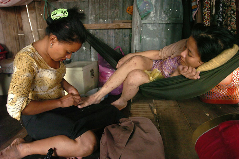 Cambodia. Phnom Penh. 2006. An outreach worker from Chhouk Sar, living with HIV, provides home based care to Keo Chenthy, a sick sex worker suffering from HIV. Chouk Sar is a support group for sex workers providing home based care through their five outreach workers, who are all living with HIV and have formerly worked as sex workers themselves.