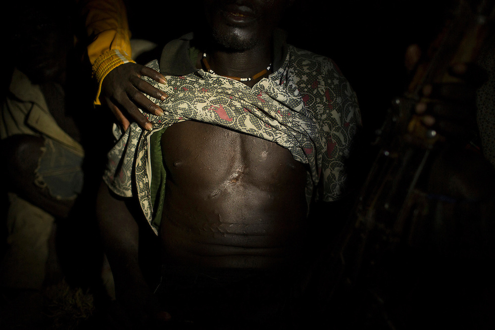 Simon Choko, 44, a community leader of a fishing camp near the shores of Lake Turkana, holds his gun as he shows a wound from a bullet which he says he sustained as he repulsed an attack by raiders from the Dhaasanac tribe of southern Ethiopia, some kilometres from Todonyang, near the Kenya-Ethiopia border in northwestern Kenya.
