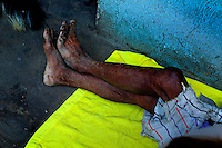A Tz'utujil mans feet shore years of wear as two American Doctors worked on him to help with his infected cancerous growth on his face at his home in Santiago. The man is to poor to afford any real health care so the two doctors volunteered to try and help the man with what ever they  could. Tu'utujil like many other Indians groups in Guatemala suffer from extreme poverty and are forced to make a living any way they can Feb. 2005. The Tz'utujil Indians and their village are best known for the occupation by the Guatemalan military in the 1980's civil war. The government set up a base in the city do to the fact that the city was used heavily by the ORPA guerrillas.   photo by darren hauck.......................................