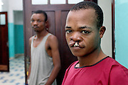 Nzey Nkoy waits to be called for surgery in the pre op ward. ..No. 88..Nzey NKOY, 22 years old, Male. Unilateral Cleft Lip repair. Surgery 6/8/2011, before..Operation Smile South Africa.Clinique Ngaliema, Avenue Des Cliniques.KInshasa, DRC Mission, June 3rd-12th 2011..© Zute & Demelza Lightfoot.www.lightfootphoto.com..