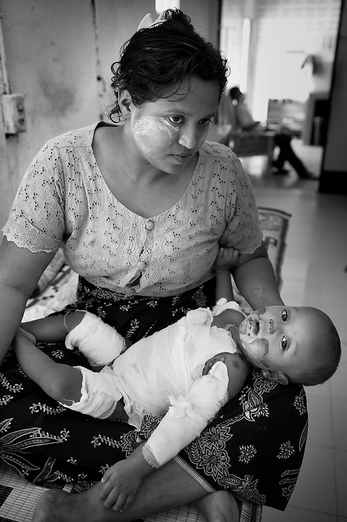 A woman made the long track from Burma into Thailand to give her small daughter much needed medical atttention at the Mae Tao Clinic after an accidental fire left the child with severe burns. .The Mae Tao Clinic (MTC), founded and directed by Dr. Cynthia Maung, provides free health care for refugees, migrant workers, and other individuals who cross the border from Burma to Thailand in search of of medical treatment.
