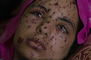 "Rawya abu Jom""a, 17, at the Shifa Hospital in Gaza City July 22,2014. Rawya was wounded when two Israeli air strikes attacked her family's apartment on Sunday night . Three of her cousins and her sister were killed in the attack . She is suffering from shrapnel in her face, her legs have perforated holes in them and her bones were crushed in her right hand . (Photo by Heidi Levine/Sipa Press)."