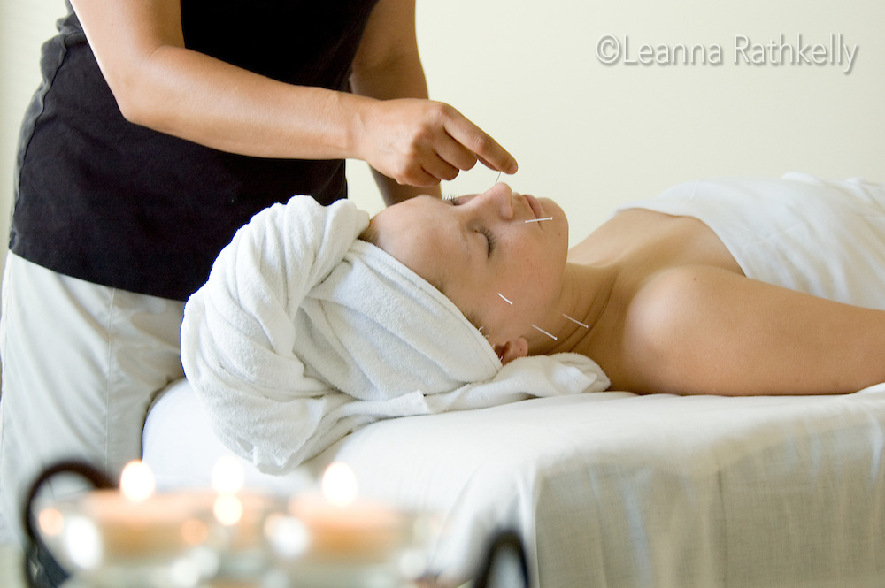 Spa acupuncture therapy involves very thin long needles tapped to nerves to reduce pain.