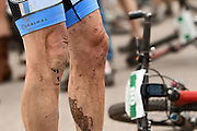 SHOT 8/19/11 11:07:54 AM - Dean Cahow's knees took a beating after  six days of racing in The Breck Epic in Breckenridge, Co. The event is a 6-day ultra-endurance mountain bike stage race held in the sprawling backcountry surrounding the town of Breckenridge, Co. The course is 240 miles and features a combined 38,000 feet of climbing, 90% of which is above 10,000 feet. More than 200 riders from 15 different countries participated in the race. (Photo by Marc Piscotty / © 2011)