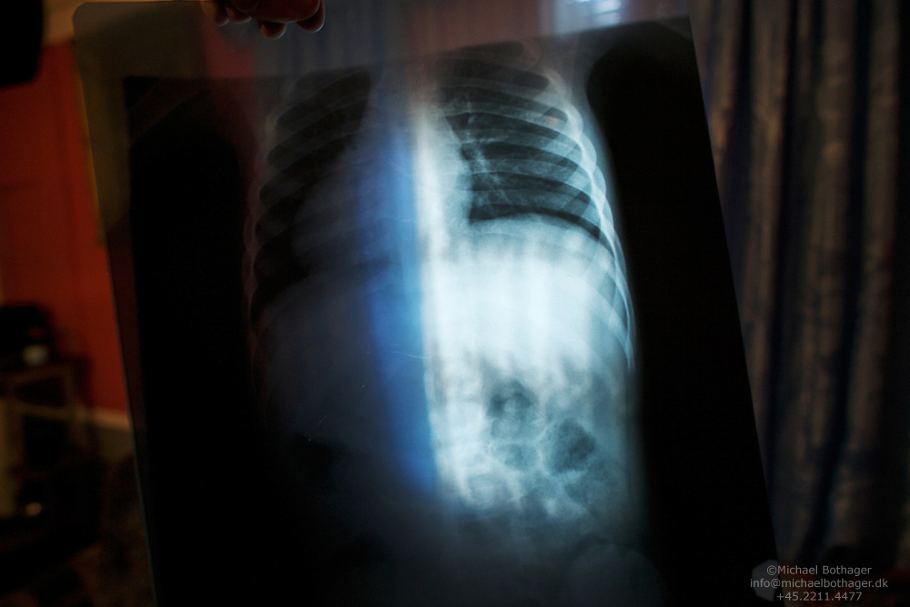 X-Ray image of Senhia's (4) lungs. Living in the camp means poor insulation from the weather and moisture. These conditions has affected Senhia's health. She suffers from reoccurring bronchitis. Her bad health and high levels of lead in her bloodstream is hindering her growth.