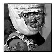 Faces of Mosul<br /> <br /> A collection of images from 4 time Pulitzer prize winning photographer Carol Guzy, gives us a glimpse into the faces of those affected by the fierce conflict with ISIS in Mosul. Wounded and weak, most who survived now face an uncertain future in the limbo of IDP camps. Shattered lives, lost loved ones and escape from the rubble of collapsed homes and the evil of ISIS doctrine, leaves scars of emotional trauma even more difficult to heal. The war in Mosul is over, but the humanitarian crisis continues.<br /> <br /> Mosul, Iraq - Team from Global Response Management provide emergency medical care at a stabilization point near the Old City.  Civilians, many injured and weak, flee the continued battle with ISIS in West Mosul amid ruins of the city.<br />  ©Carol Guzy/zReportage.com/Exclusivepix Media